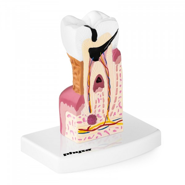 Maquette anatomique de la dentition humaine - Molaire malade
